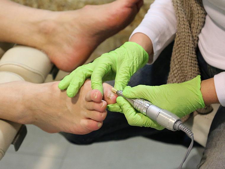 Medizinische Fußpflege, Der rollende Zeh